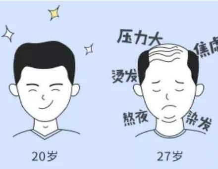 脱发到底是怎么回事?心理因素也会导致脱发?