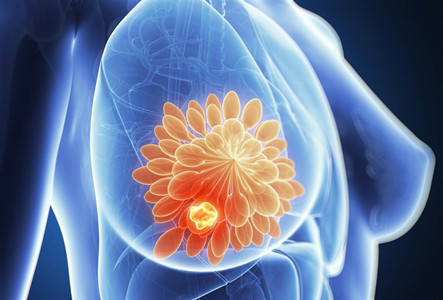 乳腺癌新药层出不穷,DS-8201领先一步